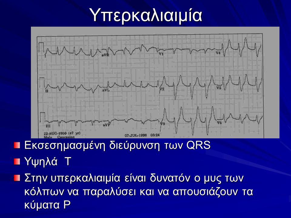 Υπερκαλιαιμία Εκσεσημασμένη διεύρυνση των QRS Υψηλά Τ Στην υπερκαλιαιμία είναι δυνατόν ο μυς των κόλπων να παραλύσει και να απουσιάζουν τα κύματα Ρ