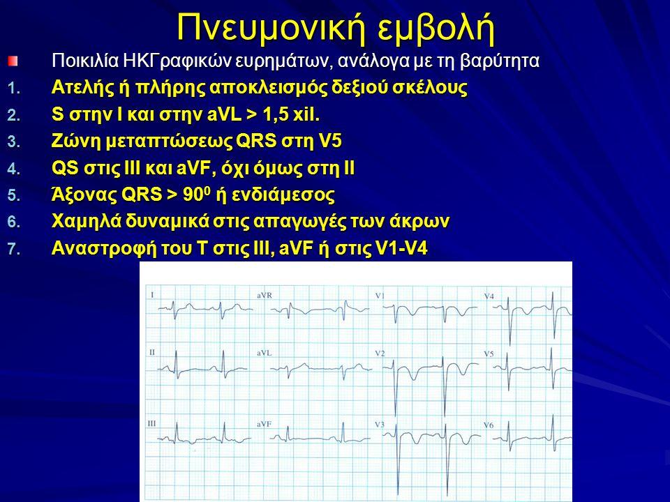 Πνευμονική εμβολή οικιλία ΗΚΓραφικών ευρημάτων, ανάλογα με τη βαρύτητα Ποικιλία ΗΚΓραφικών ευρημάτων, ανάλογα με τη βαρύτητα 1.