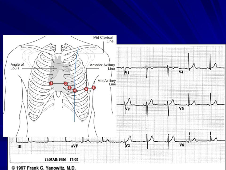 Σύνδρομο Wolf-Parkinson-White To PR < 0,12 sec Κύματα δ (βέλος), ενδεικτικά πρώιμης διέγερσης Διευρυμένα QRS Εμφανίζεται στο 0,2-0,4% του συνολικού πληθυσμού Σε ποσοστό 50% περίπου προκαλεί διάφορες αρρυθμίες Συνήθως δεν υπάρχει υποκείμενη νόσος Epstein Yπερτροφική μυοκαρδιοπάθεια Πρόπτωση μιτροειδούς Διατατική μυοκαρδιοπάθεια
