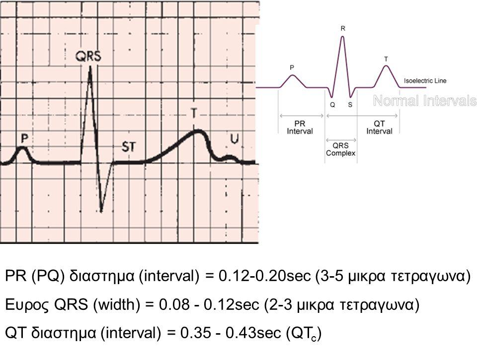 Αξιολόγηση δεδομένων ΕΠΑΡΜΑ Ρ Κάθε έπαρμα Ρ ακολουθείται από QRS Φυσιολογικός αριθμός Ρ μεταξύ 60-100/1΄ (απόκλιση < 10%) (300/Μ ή 1500/μ) Ρ < 60/1΄ = Κολπική βραδυκαρδία Ρ > 100/1΄ = Κολπική ταχυκαρδία Απόκλιση > 10% = κολπική αρρυθμία ↑Υψος στην ΙΙ (>2.5mm) και/ή V1 (>1.5mm): Ενδειξη Υπερτ Δε Κολπου Ευρυ (> 0.12s) στην ΙΙ +/- με εγκοπη: Ενδειξη Υπερτ Αρ.