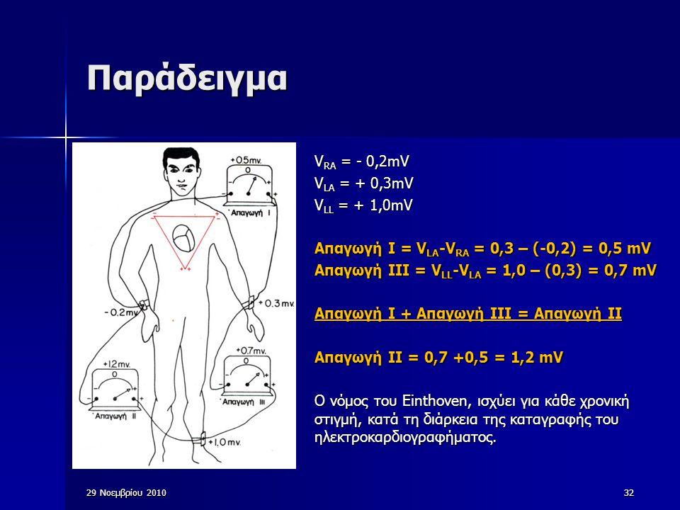 29 Νοεμβρίου 201032 Παράδειγμα V RA = - 0,2mV V LA = + 0,3mV V LL = + 1,0mV Απαγωγή Ι = V LA -V RA = 0,3 – (-0,2) = 0,5 mV Απαγωγή ΙIΙ = V LL -V LA =