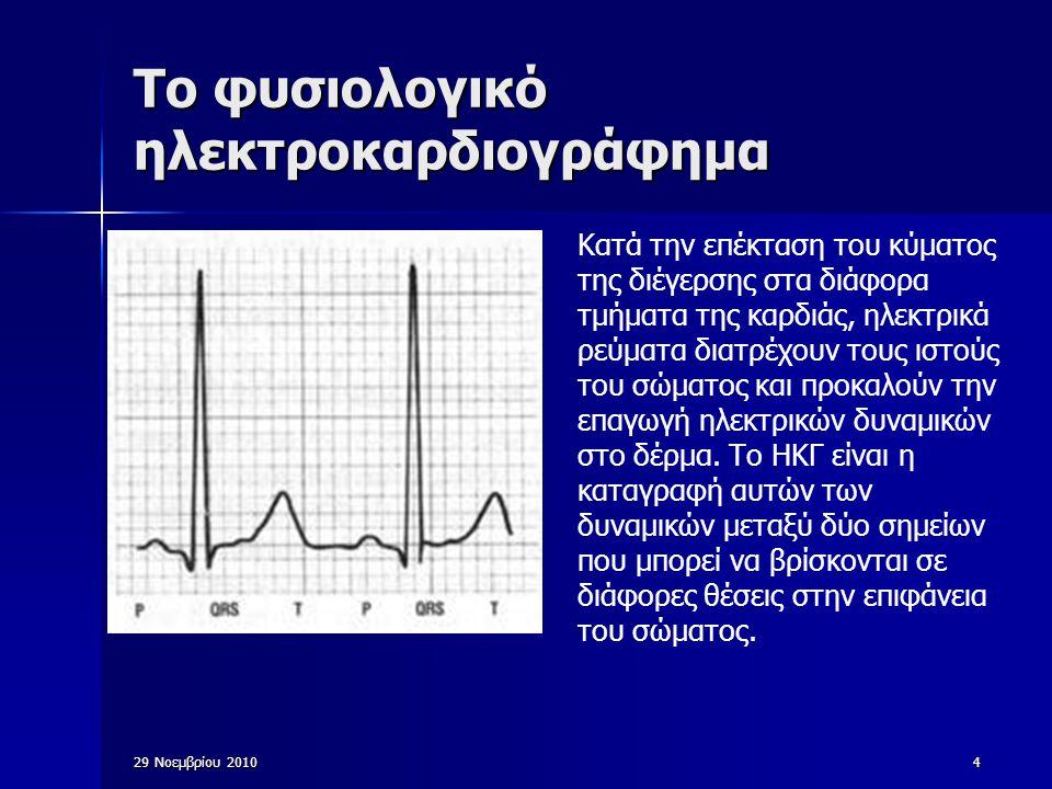 29 Νοεμβρίου 201025 Μέθοδοι καταγραφής του ηλεκτροκαρδιογραφήματος Δυναμικό και πολικότητα του μυοκαρδίου μεταβάλλονται συχνά σε διάστημα μικρότερο από 0,01 sec  απαιτούνται καταγραφικά που να ανταποκρίνονται ταχύτατα προς τς μεταβολές Συνηθέστεροι καταγραφείς: με γραφίδα, καταγράφει το ΗΚΓ με πεννάκι πάνω σε κινούμενο χαρτί με γραφίδα, καταγράφει το ΗΚΓ με πεννάκι πάνω σε κινούμενο χαρτί ειδικό χαρτί που μαυρίζει με την έκθεση σε θερμότητα ή όταν διέρχεται ηλεκτρικό ρέυμα από την ακίδα της γραφίδας ειδικό χαρτί που μαυρίζει με την έκθεση σε θερμότητα ή όταν διέρχεται ηλεκτρικό ρέυμα από την ακίδα της γραφίδας