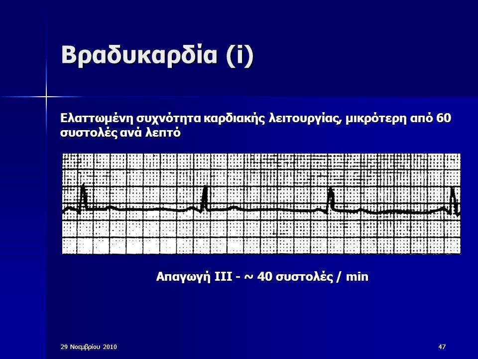 29 Νοεμβρίου 201047 Βραδυκαρδία (i) Ελαττωμένη συχνότητα καρδιακής λειτουργίας, μικρότερη από 60 συστολές ανά λεπτό Απαγωγή ΙΙΙ - ~ 40 συστολές / min