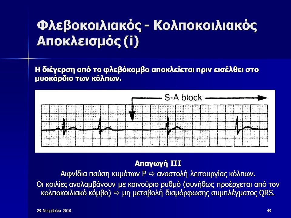 49 Φλεβοκοιλιακός - Κολποκοιλιακός Αποκλεισμός (i) Απαγωγή ΙΙΙ Αιφνίδια παύση κυμάτων P  αναστολή λειτουργίας κόλπων. Οι κοιλίες αναλαμβάνουν με καιν