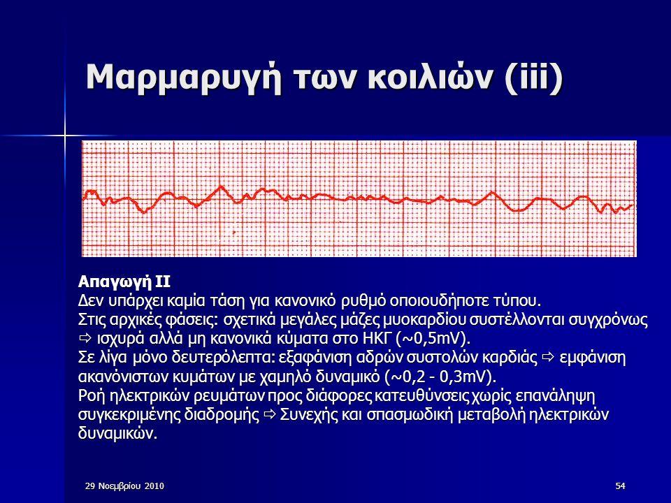 54 Μαρμαρυγή των κοιλιών (iii) Απαγωγή ΙΙ Δεν υπάρχει καμία τάση για κανονικό ρυθμό οποιουδήποτε τύπου. Στις αρχικές φάσεις: σχετικά μεγάλες μάζες μυο