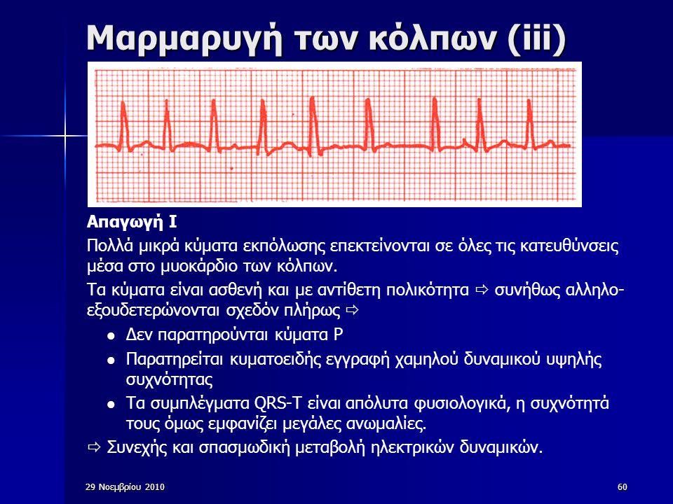 60 Μαρμαρυγή των κόλπων (iii) Απαγωγή Ι Πολλά μικρά κύματα εκπόλωσης επεκτείνονται σε όλες τις κατευθύνσεις μέσα στο μυοκάρδιο των κόλπων. Τα κύματα ε