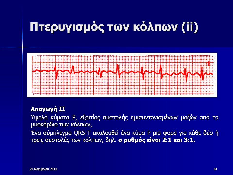 64 Πτερυγισμός των κόλπων (ii) Απαγωγή ΙΙ Υψηλά κύματα P, εξαιτίας συστολής ημισυντονισμένων μαζών από το μυοκάρδιο των κόλπων, Ένα σύμπλεγμα QRS-T ακ
