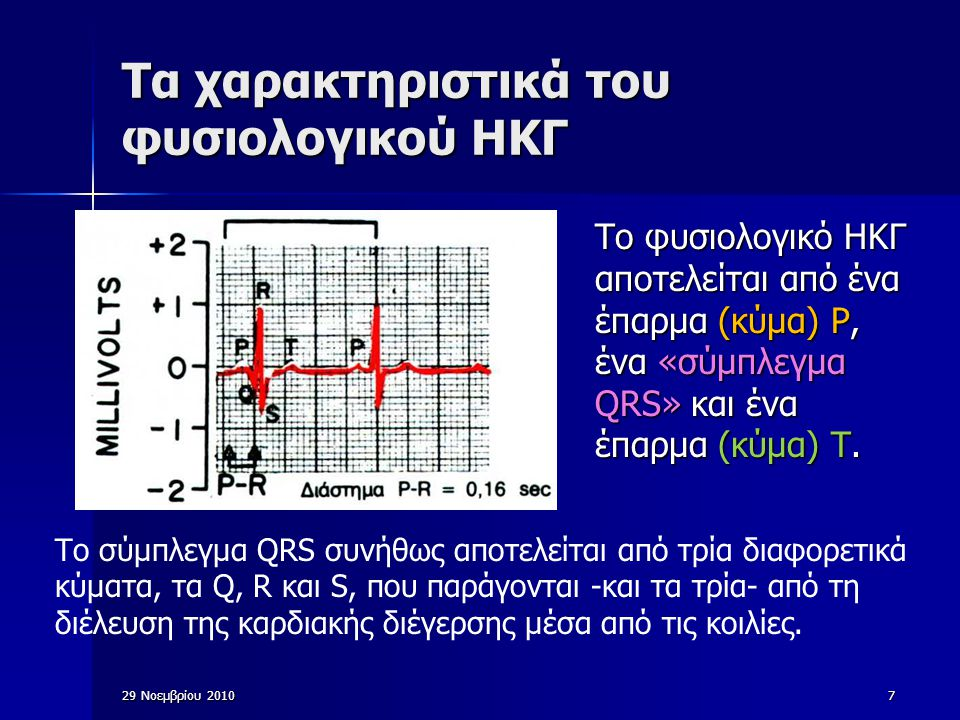 29 Νοεμβρίου 20108 Χαρακτηριστικά του φυσιολογικού ECG Το κύμα Ρ προκαλείται από ηλεκτρικά ρεύματα τα οποία παράγονται κατά την εκπόλωση των κόλπων πριν από τη συστολή τους, ενώ το σύμπλεγμα QRS προκαλείται από ηλεκτρικά ρεύματα τα οποία παράγονται κατά την εκπόλωση των κοιλιών πριν από τη συστολή τους, δηλαδή, κατά την επέκταση της εκπόλωσης στο μυοκάρδιο των κοιλιών.