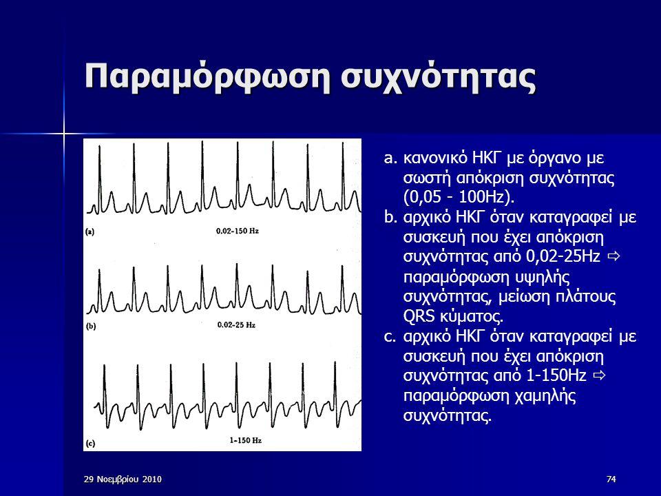 74 Παραμόρφωση συχνότητας a.κανονικό ΗΚΓ με όργανο με σωστή απόκριση συχνότητας (0,05 - 100Hz). b.αρχικό ΗΚΓ όταν καταγραφεί με συσκευή που έχει απόκρ