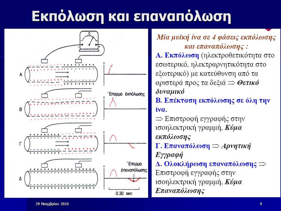 29 Νοεμβρίου 201040 Βλάβες της Καρδιάς (ii) Έμφραγμα μυοκαρδίου: πλήρης απόφραξη μιας στεφανιαίας αρτηρίας  μια περιοχή της καρδιάς δεν αιματοδοτείται καθόλου Ηλεκτρικό κενό της αποφραγμένης περιοχής κατά τη λειτουργία της καρδιάς Ύπαρξη σημαντικού κύματος Q με ύψος ίσο με το 1/3 του QRS Ύπαρξη σημαντικού κύματος Q με εύρος 0,04 sec Ανύψωση του ST (της τάξεως των 4mm)