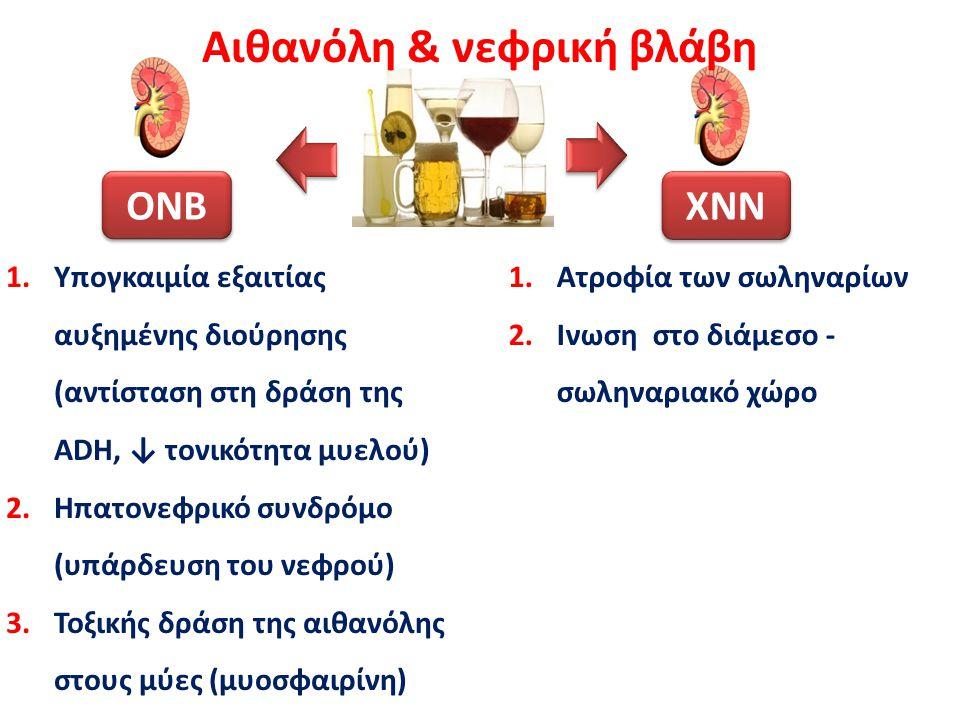 Αλκοολική κίρρωση: Κατακράτηση Na + & Η 2 Ο Αλκοολική κίρρωση Πυλαία υπέρταση Αγγειοδιαστολή σπλαχνικών αγγείων ↓ ΔΚΟΑ Υποδοχέας Αλδοστερόνης Κατακράτηση Νa + Ασκίτης - Οίδημα ADH V 2 υποδοχέας Κατακράτηση Η 2 Ο Υπερογκαιμική Υπονατριαιμία Υπερογκαιμική Υπονατριαιμία Ενεργοποίηση αγγειοσυσπαστικών συστημάτων RAASADH Σπιρονολακτόνη V 2 ανταγωνιστές