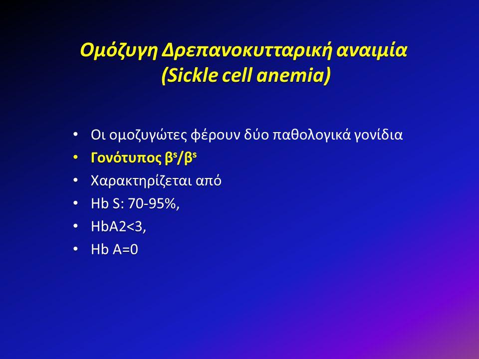 Ομόζυγη Δρεπανοκυτταρική αναιμία (Sickle cell anemia) Οι ομοζυγώτες φέρουν δύο παθολογικά γονίδια Γονότυπος β s /β s Γονότυπος β s /β s Χαρακτηρίζεται