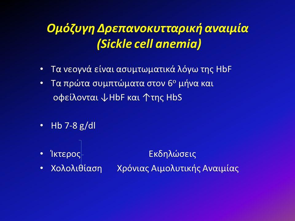 Ομόζυγη Δρεπανοκυτταρική αναιμία (Sickle cell anemia) Τα νεογνά είναι ασυμτωματικά λόγω της HbF Τα νεογνά είναι ασυμτωματικά λόγω της HbF Τα πρώτα συμ