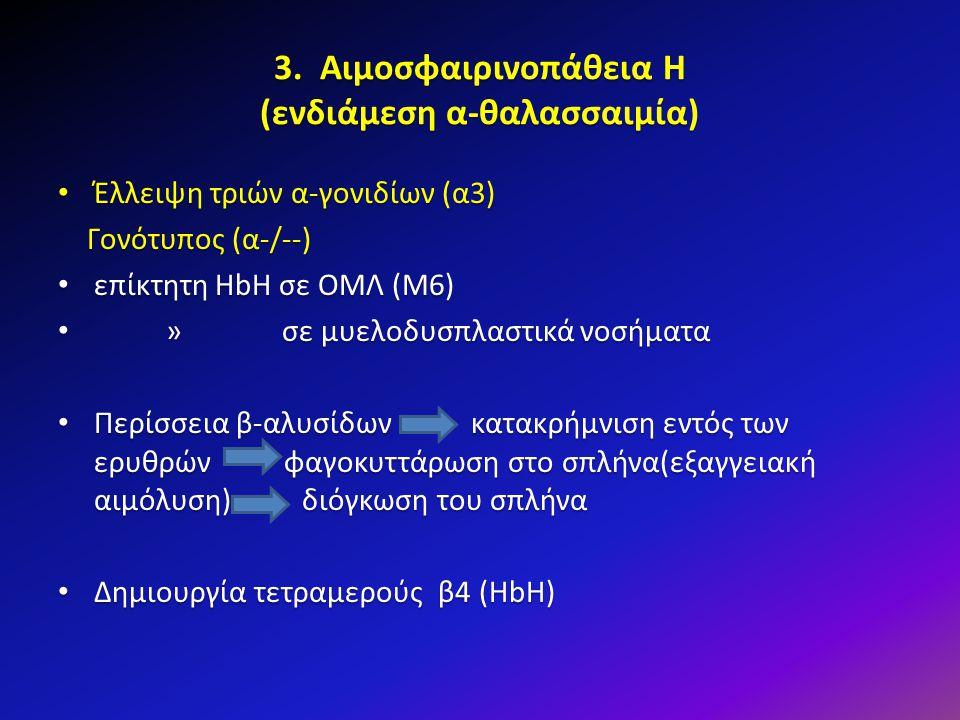 3. Αιμοσφαιρινοπάθεια Η (ενδιάμεση α-θαλασσαιμία) Έλλειψη τριών α-γονιδίων (α3) Έλλειψη τριών α-γονιδίων (α3) Γονότυπος (α-/--) Γονότυπος (α-/--) επίκ
