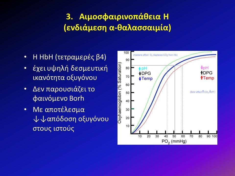 3. Αιμοσφαιρινοπάθεια Η (ενδιάμεση α-θαλασσαιμία) Η HbH (τετραμερές β4) Η HbH (τετραμερές β4) έχει υψηλή δεσμευτική ικανότητα οξυγόνου έχει υψηλή δεσμ