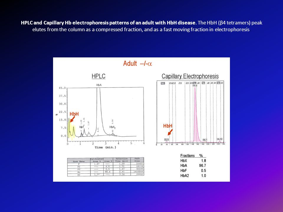 HPLC and Capillary Hb electrophoresis patterns of an adult with HbH disease. The HbH (β4 tetramers) peak elutes from the column as a compressed fracti