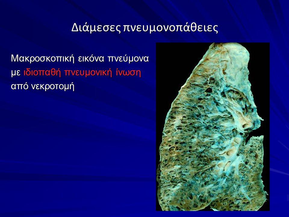 Διάμεσες πνευμονοπάθειες Μακροσκοπική εικόνα πνεύμονα με ιδιοπαθή πνευμονική ίνωση από νεκροτομή