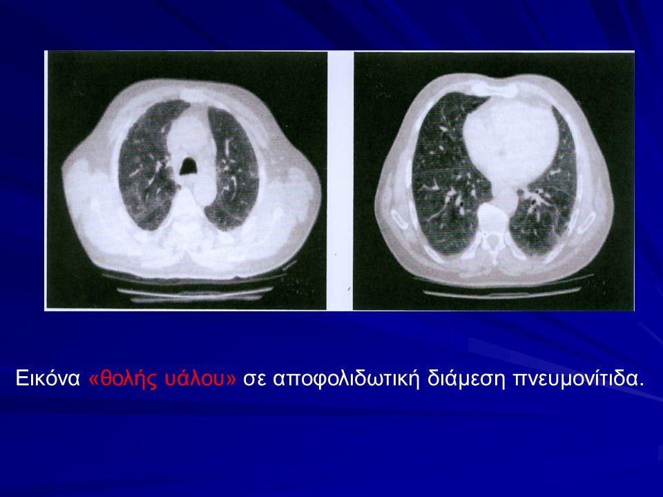 Εικόνα «θολής υάλου» σε αποφολιδωτική διάμεση πνευμονίτιδα.