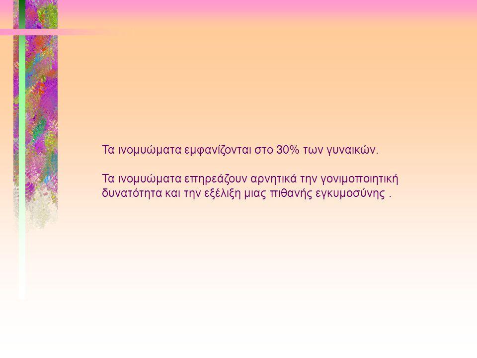 Τα ινομυώματα εμφανίζονται στο 30% των γυναικών.