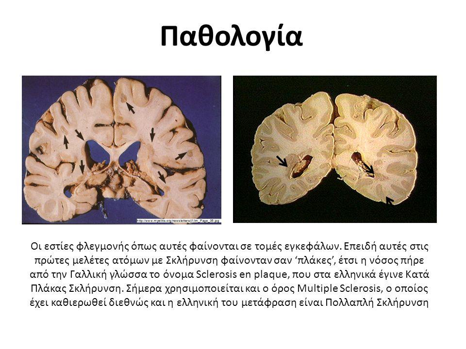 Παθολογία Οι εστίες φλεγμονής όπως αυτές φαίνονται σε τομές εγκεφάλων. Επειδή αυτές στις πρώτες μελέτες ατόμων με Σκλήρυνση φαίνονταν σαν 'πλάκες', έτ
