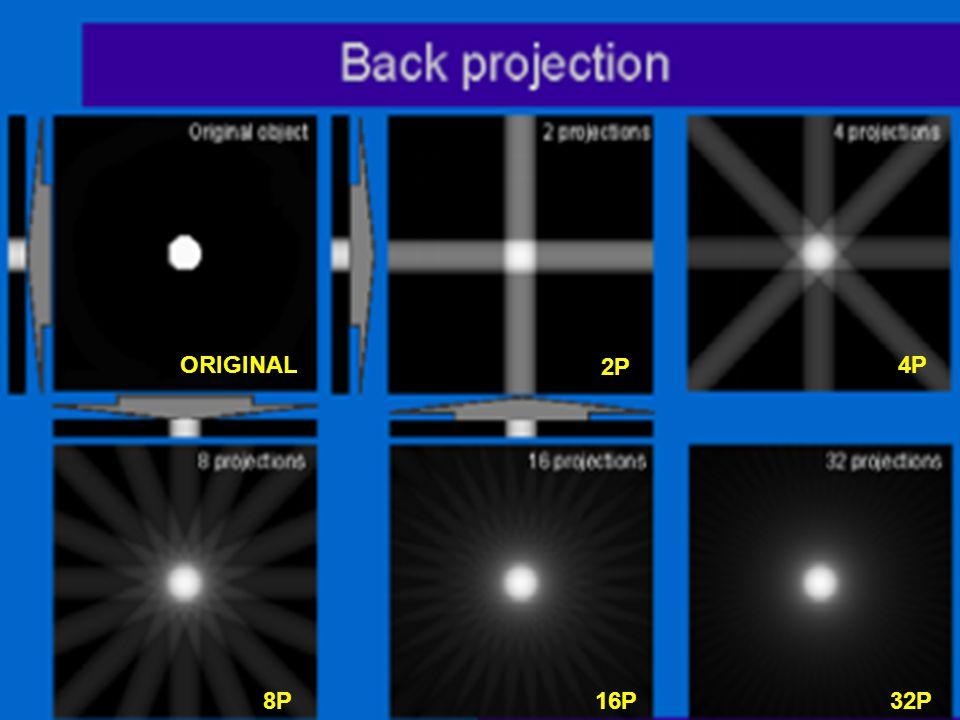 Back Projection (BP) Eπάλειψη (μουντζούρωμα) κάθε προβολής σε μία περιοχή του αντικειμένου κατά μήκος της διεύθυνσης φ στην οποία μετρήθηκε.