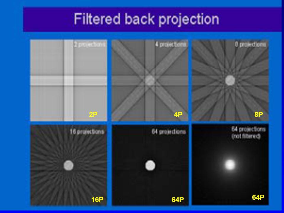 Filtered Back Projection (FBP) Εφαρμογή μιας μαθηματικής διεργασίας η οποία οξύνει τις προβολές έτσι ώστε να ακυρώνεται ακριβώς το αποτέλεσμα της θολότητας.