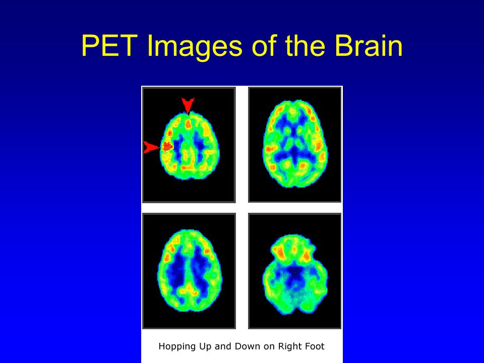 Ανάλυση PET σε σχέση με το MRI Modern PET ~ 2-3 mm resolution (1.3 mm) MRI PET