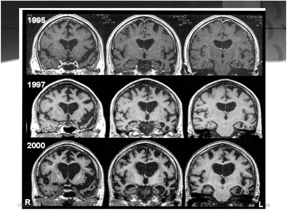 15 ALS και μετωποκροταφική άνοια Η Πλάγια Μυατροφική Σκλήρυνση (ALS) ή Νόσος του Κινητικού Νευρώνα έχει συσχετιστεί με την μετωποκροταφική άνοια. Οι μ