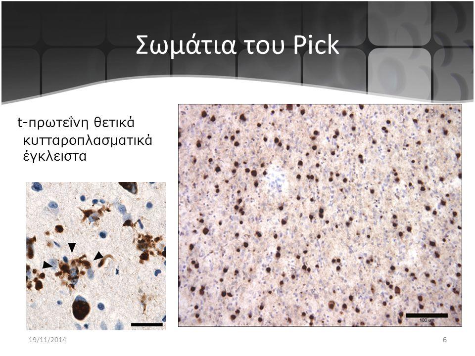 6 Σωμάτια του Pick t-πρωτεΐνη θετικά κυτταροπλασματικά έγκλειστα 19/11/20146