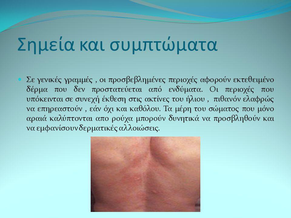 Σημεία και συμπτώματα Σε γενικές γραμμές, οι προσβεβλημένες περιοχές αφορούν εκτεθειμένο δέρμα που δεν προστατεύεται από ενδύματα. Οι περιοχές που υπό