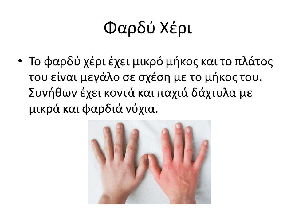 Φαρδύ Χέρι Το φαρδύ χέρι έχει μικρό μήκος και το πλάτος του είναι μεγάλο σε σχέση με το μήκος του. Συνήθων έχει κοντά και παχιά δάχτυλα με μικρά και φ