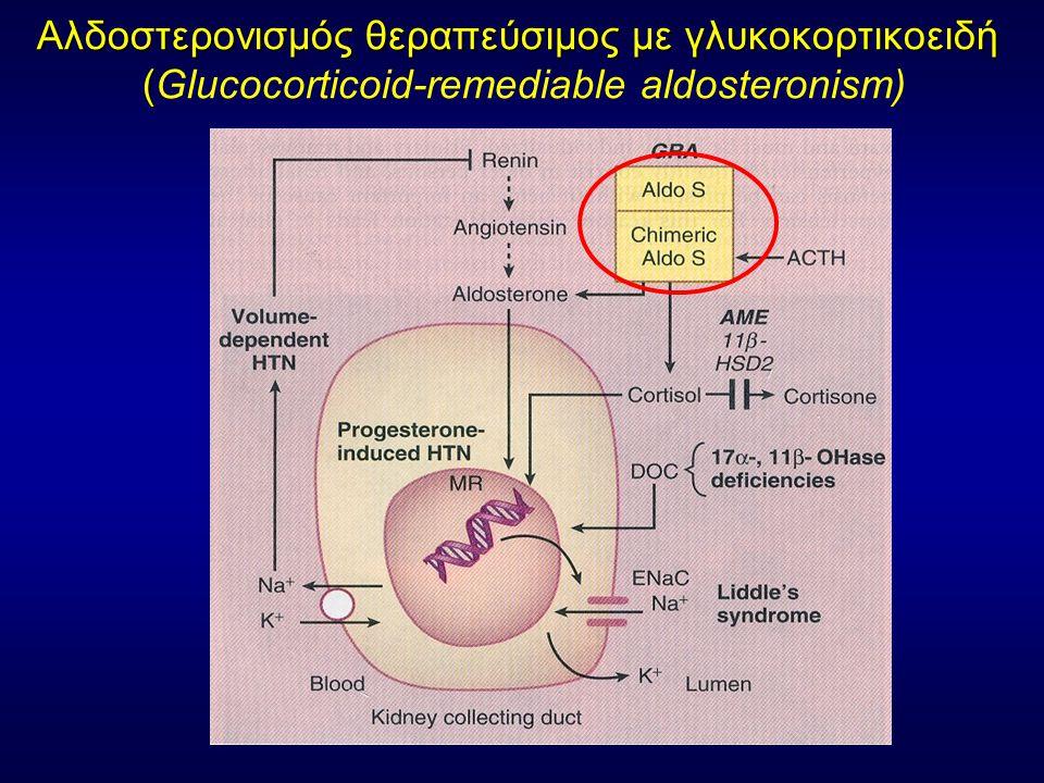 Aλδοστερονισμός θεραπεύσιμος με γλυκοκορτικοειδή ( Aλδοστερονισμός θεραπεύσιμος με γλυκοκορτικοειδή (Glucocorticoid-remediable aldosteronism)
