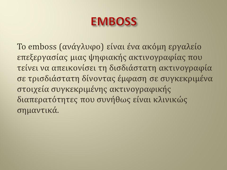 To emboss (ανάγλυφο) είναι ένα ακόμη εργαλείο επεξεργασίας μιας ψηφιακής ακτινογραφίας που τείνει να απεικονίσει τη δισδιάστατη ακτινογραφία σε τρισδι