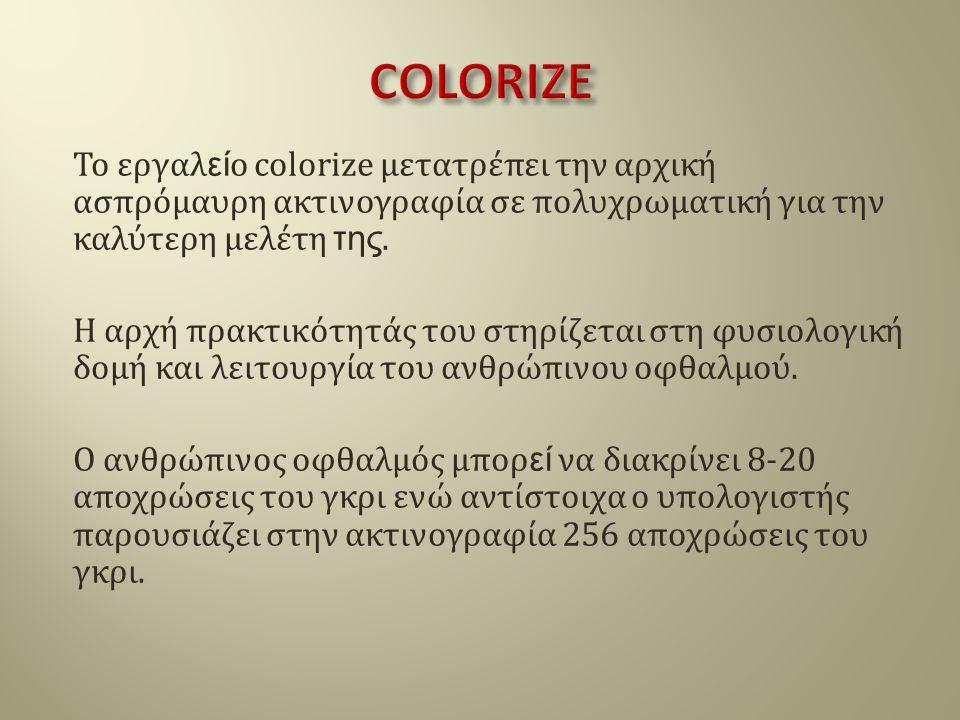 Το εργαλ εί ο colorize μετατρέπει την αρχική ασπρόμαυρη ακτινογραφία σε πολυχρωματική για την καλύτερη μελέτη της. Η αρχή πρακτικότητάς του στηρίζεται