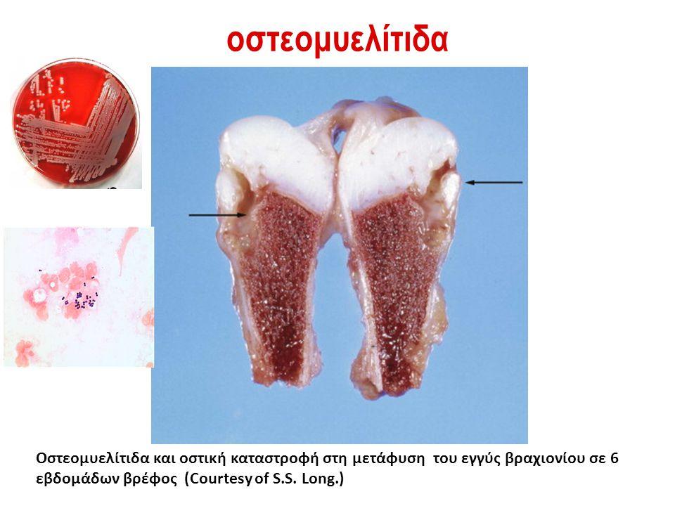 οστεομυελίτιδα Οστεομυελίτιδα και οστική καταστροφή στη μετάφυση του εγγύς βραχιονίου σε 6 εβδομάδων βρέφος (Courtesy of S.S. Long.)