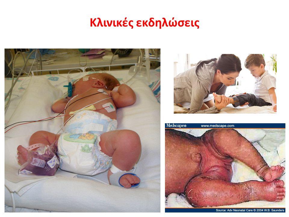 Κλινικές εκδηλώσεις