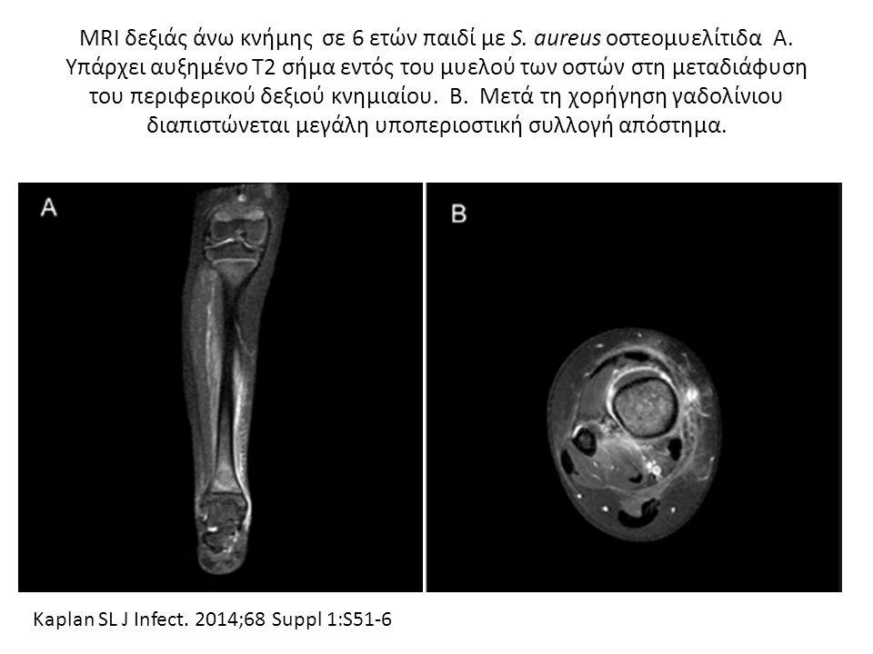 MRI δεξιάς άνω κνήμης σε 6 ετών παιδί με S. aureus οστεομυελίτιδα Α. Υπάρχει αυξημένο Τ2 σήμα εντός του μυελού των οστών στη μεταδιάφυση του περιφερικ