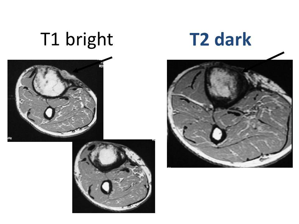 T1 bright T2 dark