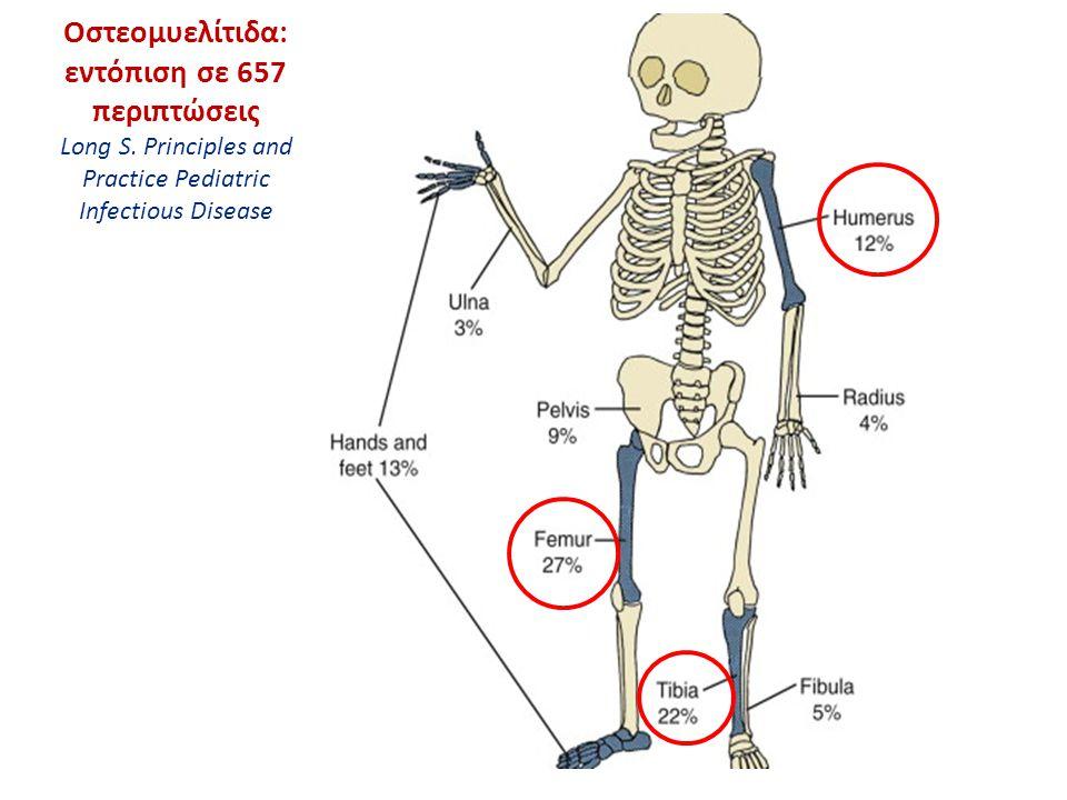 Απλή ακτινογραφία An x-ray shows a lytic lesion (arrow) of the distal epiphysis of the femur.
