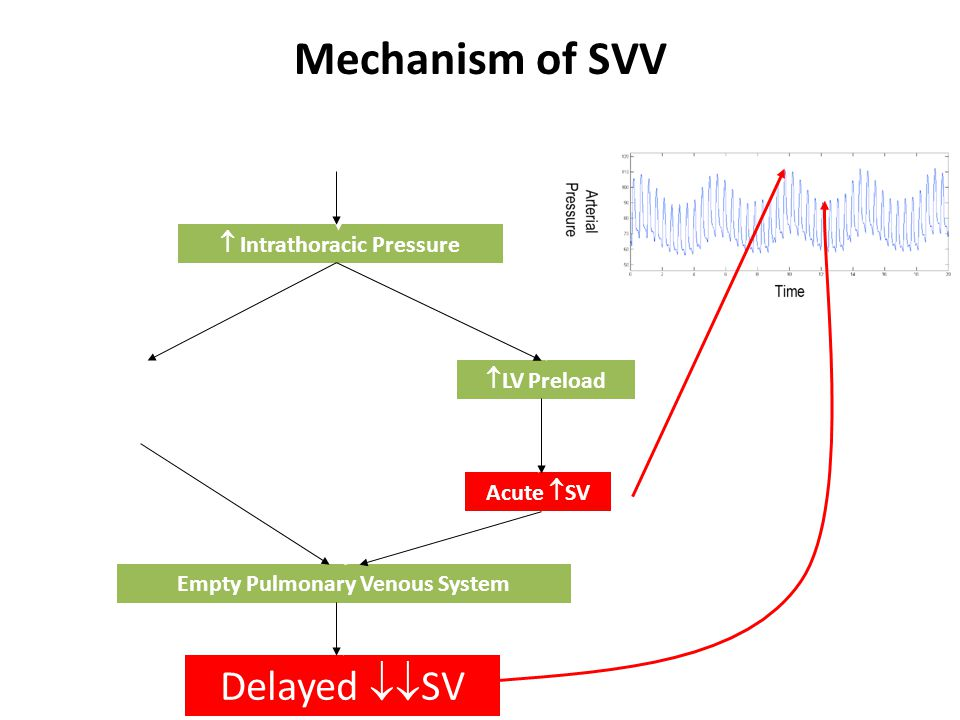 Positive Pressure Breath Mechanism of SVV  RV Afterload  RV Preload  LV Preload Acute  SV Delayed  SV Empty Pulmonary Venous System  Intrathoracic Pressure