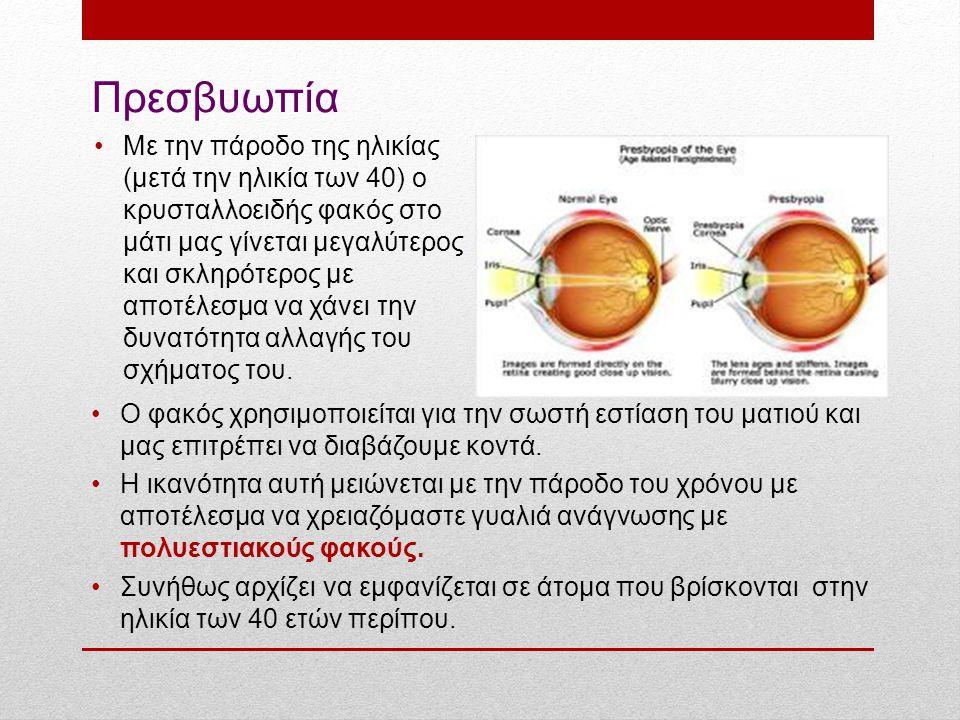Πρεσβυωπία Ο φακός χρησιμοποιείται για την σωστή εστίαση του ματιού και μας επιτρέπει να διαβάζουμε κοντά. Η ικανότητα αυτή μειώνεται με την πάροδο το