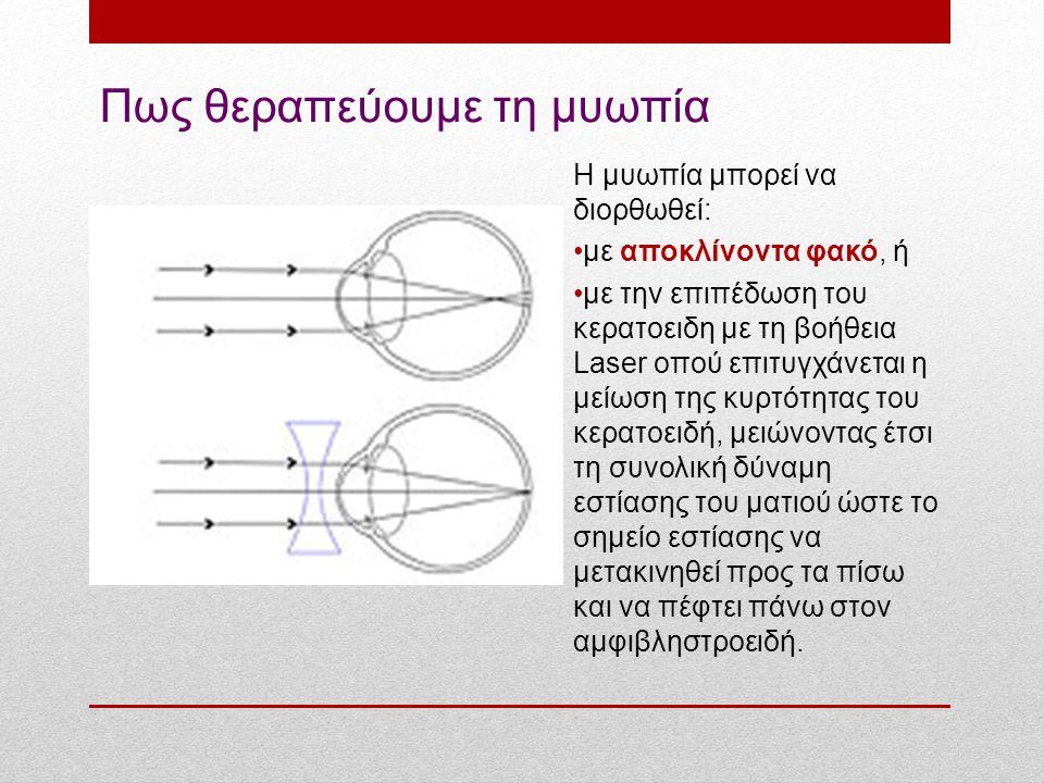 Πως θεραπεύουμε τη μυωπία Η μυωπία μπορεί να διορθωθεί: με αποκλίνοντα φακό, ή με την επιπέδωση του κερατοειδη με τη βοήθεια Laser οπού επιτυγχάνεται