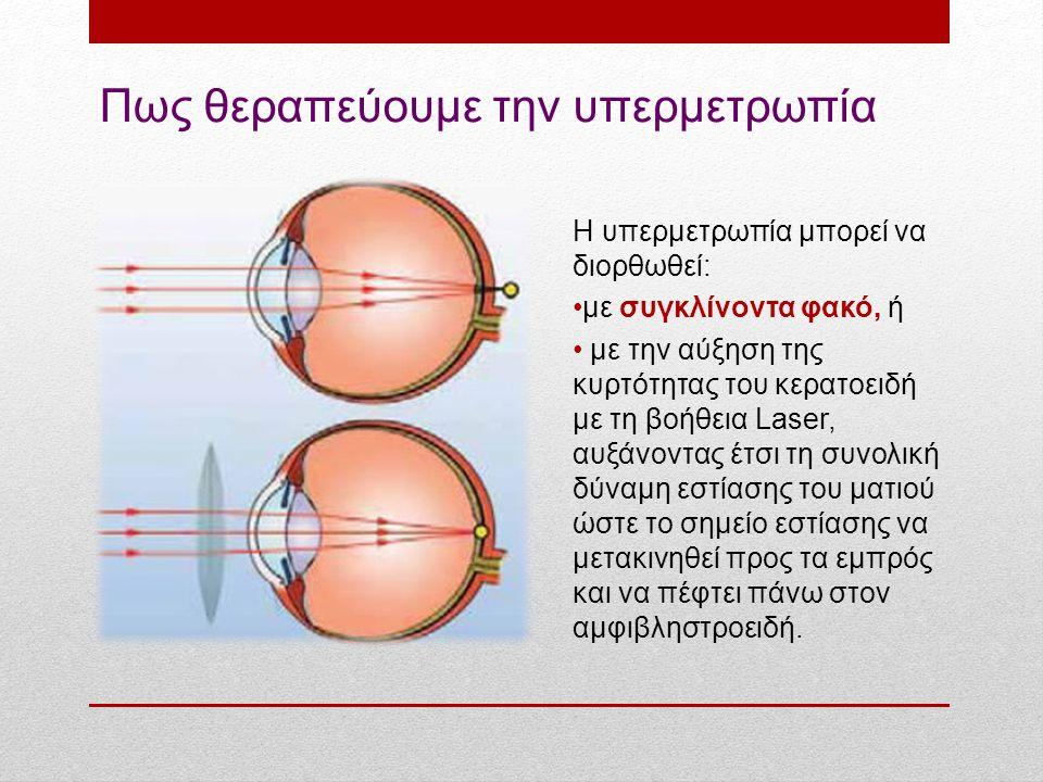 Πως θεραπεύουμε την υπερμετρωπία Η υπερμετρωπία μπορεί να διορθωθεί: με συγκλίνοντα φακό, ή με την αύξηση της κυρτότητας του κερατοειδή με τη βοήθεια