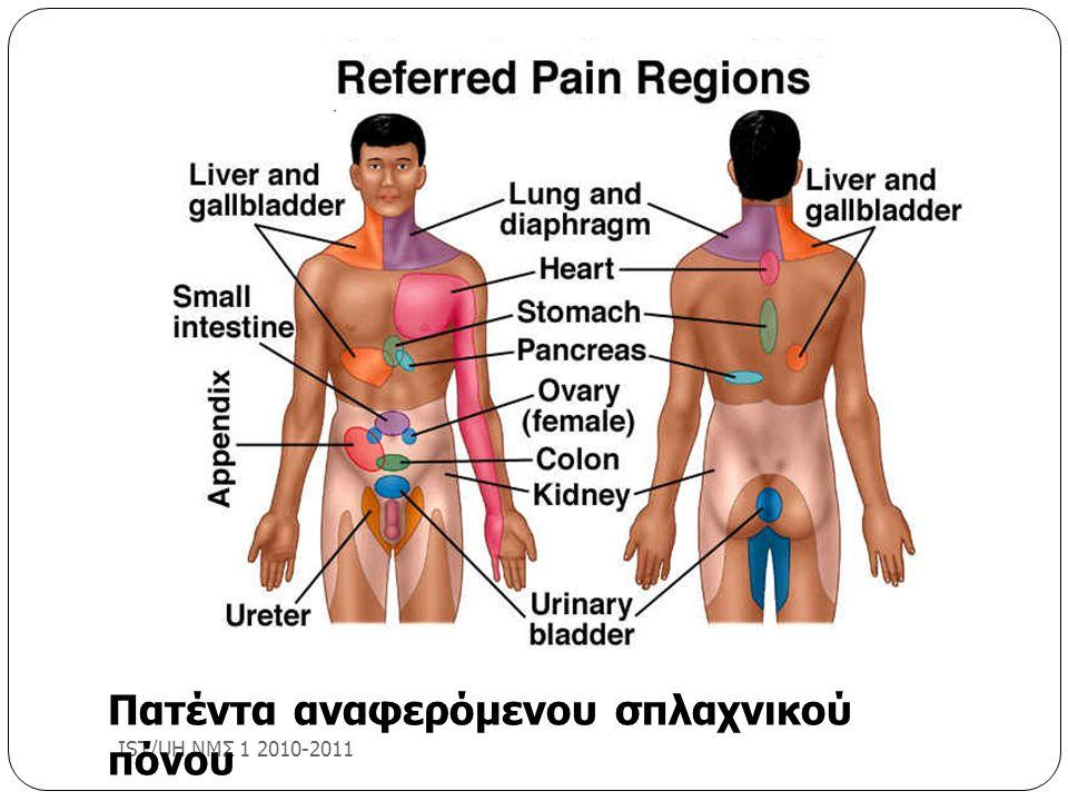 IST/UH ΝΜΣ 1 2010-2011 Πατέντα αναφερόμενου σπλαχνικού πόνου