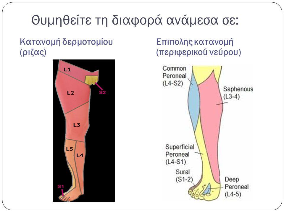 Θυμηθείτε τη διαφορά ανάμεσα σε: Κατανομή δερμοτομίου (ριζας) Επιπολης κατανομή (περιφερικού νεύρου)