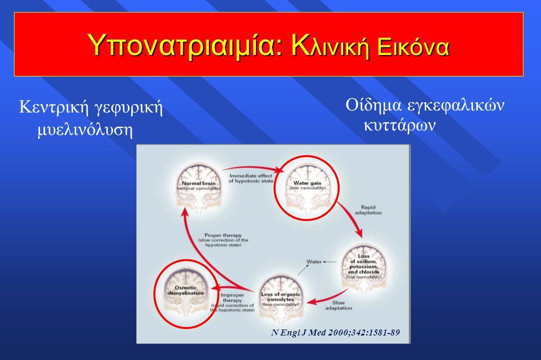 Υπονατριαιμία: Κ λινική Εικόνα N Engl J Med 2000;342:1581-89 Οίδημα εγκεφαλικών κυττάρων Κεντρική γεφυρική μυελινόλυση