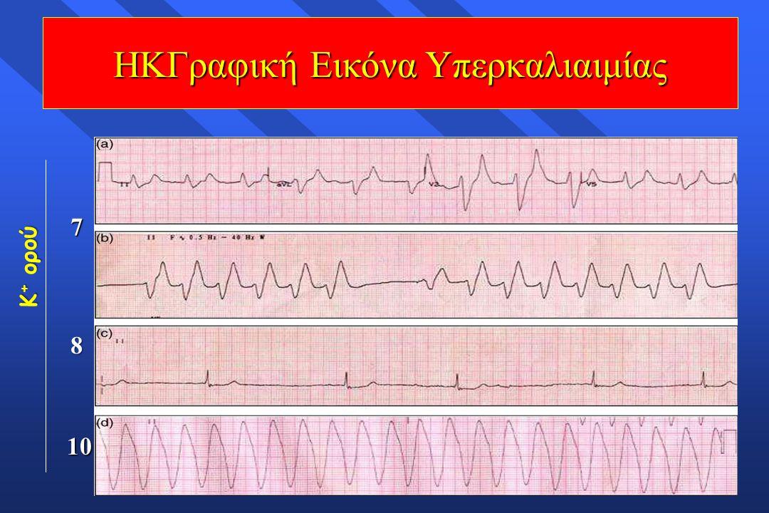 K + ορού 7 8 Παράταση P-R, υψηλά Τ, διεύρυνση QRS, κατάσπαση ST (6,5-8 meq/L) 10 ΗΚΓραφική Εικόνα Υπερκαλιαιμίας Οξυκόρυφα Τ (5,5-6,5 meq/L) Απουσία P