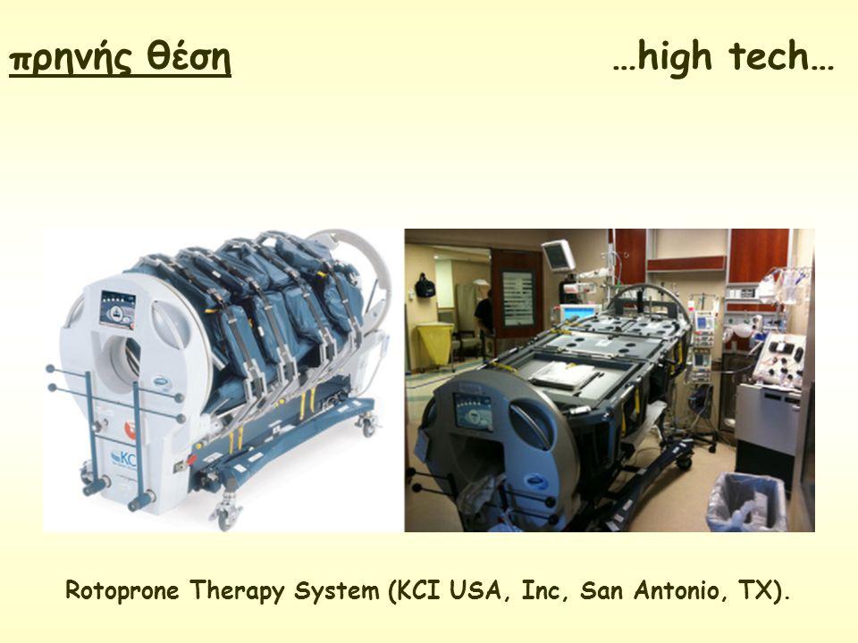 Rotoprone Therapy System (KCI USA, Inc, San Antonio, TX). πρηνής θέση …high tech…