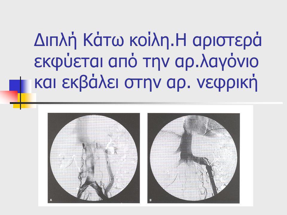 Διπλή Κάτω κοίλη.Η αριστερά εκφύεται από την αρ.λαγόνιο και εκβάλει στην αρ.