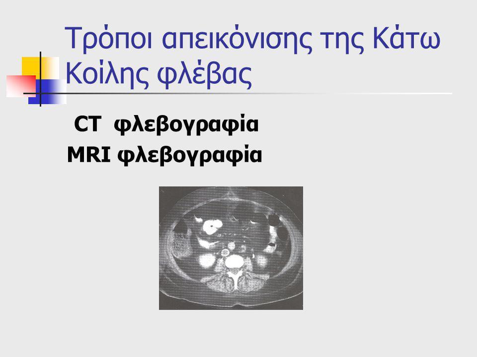 Τρόποι απεικόνισης της Κάτω Κοίλης φλέβας CT φλεβογραφία MRI φλεβογραφία